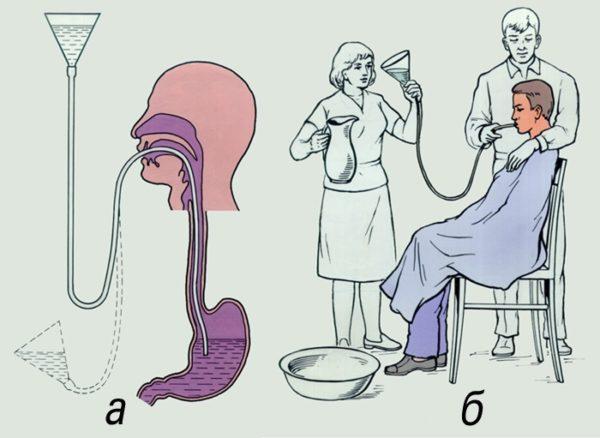 Промывание желудка с помощью зонда: а — схема промывания; б — техника промывания
