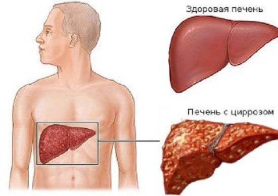 Сравнение здоровой печени и печени, пораженной циррозом