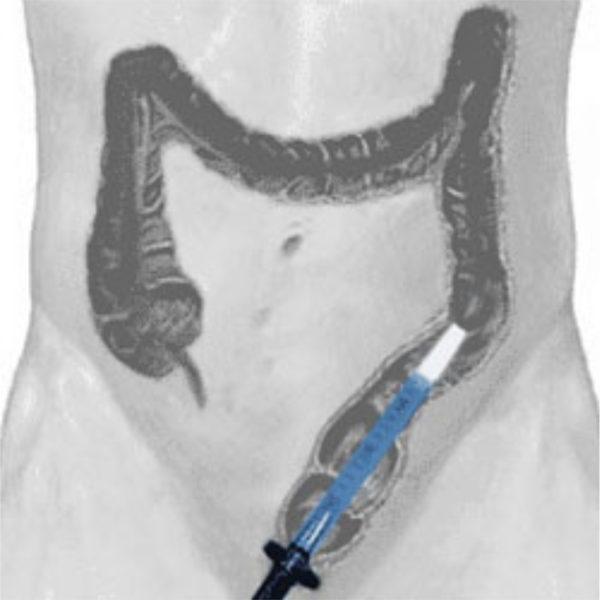 Ректоскопия дает возможность более скрупулезного обследования прямой кишки