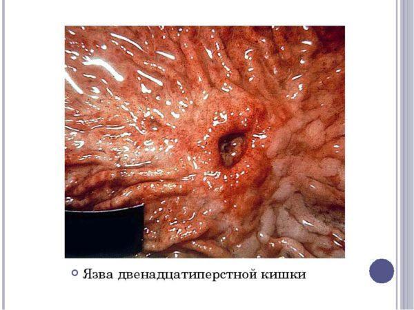 Язва двенадцатиперстной кишки: симптомы, лечение и питание