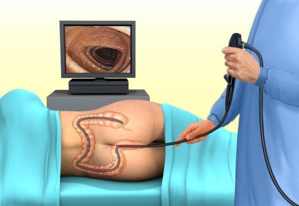 В зависимости от болевого порога, во время колоноскопии, пациент испытывает от легкого дискомфорта до сильной боли и спазмов