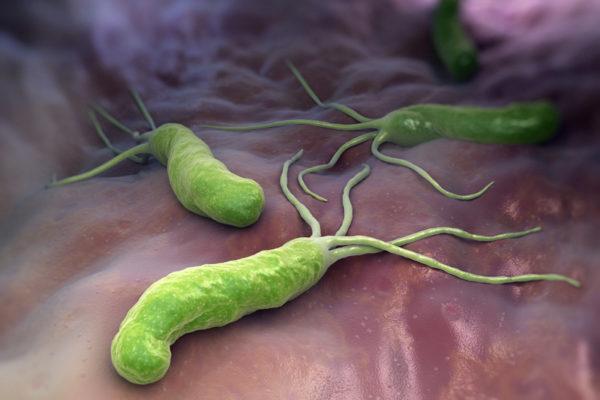 Бактерия Хеликобактер: симптомы и лечение