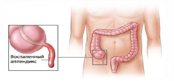 Воспаление аппендикса сопровождается ощущением тяжести и резкими болями в животе