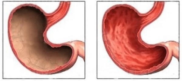 Атрофия слизистой желудка как лечить и восстановить