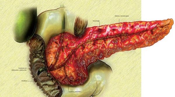 Болезненность ощущений при панкреатите объясняется тем, что часть организма переваривает сама себя