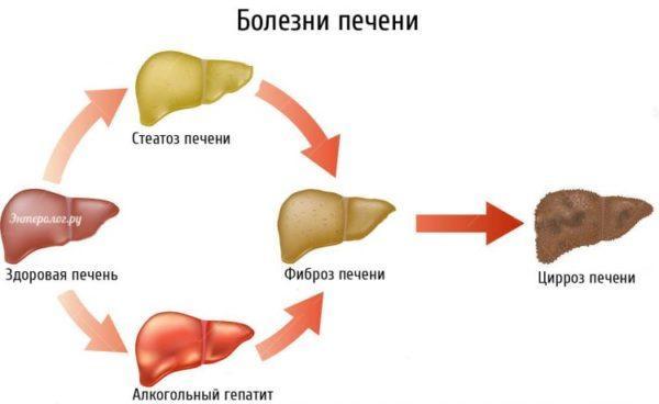 Болезни печени