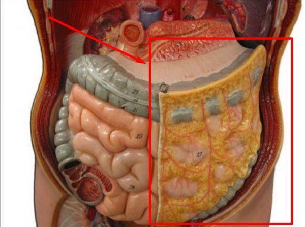 Брюшная полость здорового человека и человека с перитонитом