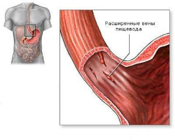 Черный оттенок стула порой обусловлен кровотечением внутри пищевода, вызванным варикозным расширением вен