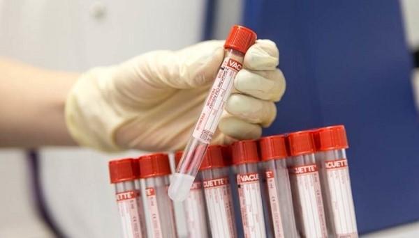 Чтобы диагностировать наличие раковых заболеваний ЖКТ, необходимо сдать обычные анализы