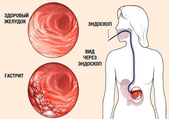 Диагностика желудка с помощью эндоскопа