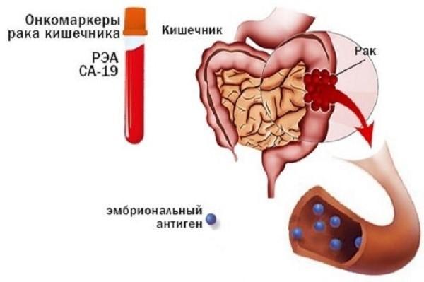 Для каждого органа характерны собственные комбинации раковых маркеров