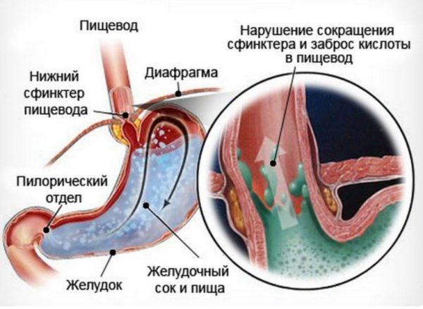 Гастроэзофагеальная болезнь изнутри