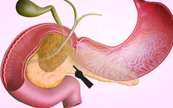 Хронический панкреатит билиарнозависимый