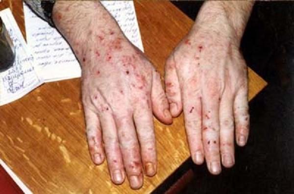 Иногда при панкреатите образуются пигментные высыпания по всему телу