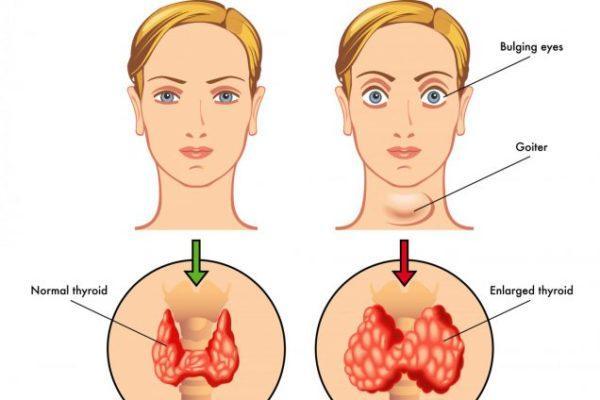 Избыток гормонов щитовидной железы приводит к заболеванию – гипертиреоз, симптомы которого разнообразны и имеют яркие клинические проявления