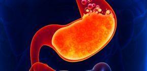 Изжога - причины возникновения и лечение