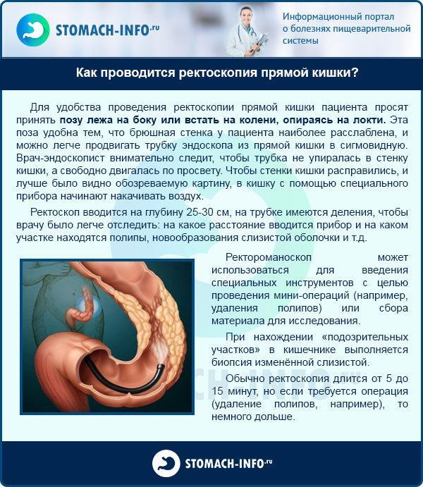 Как проводится ректоскопия прямой кишки?