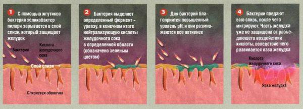 Как развивается в организме Хеликобактер пилори