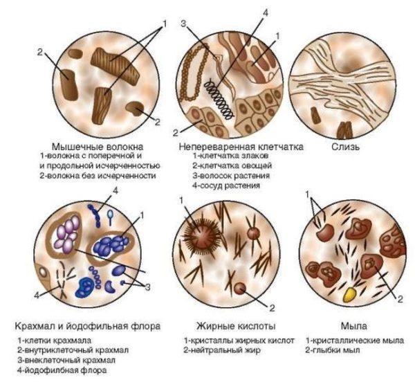 Кал под микроскопом