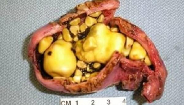 Калькулезный холецистит - одна из наиболее распространённых болезней
