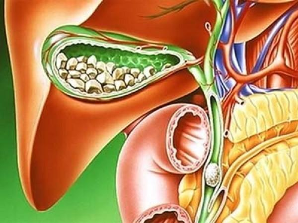 Калькулёзный холецистит: лечение и диета