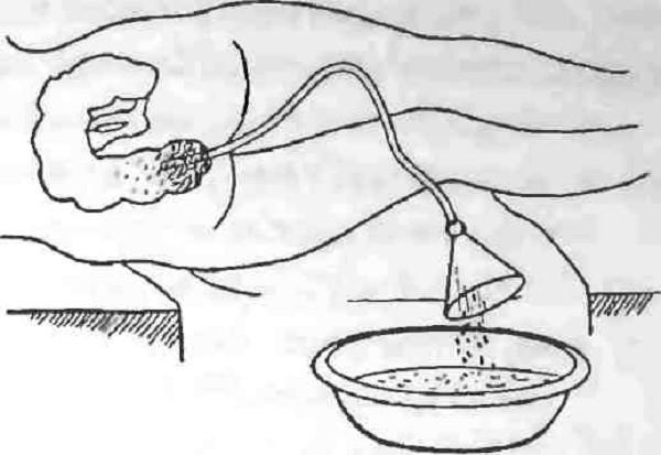 Каловые камни поступают из кишечника по зонду в таз