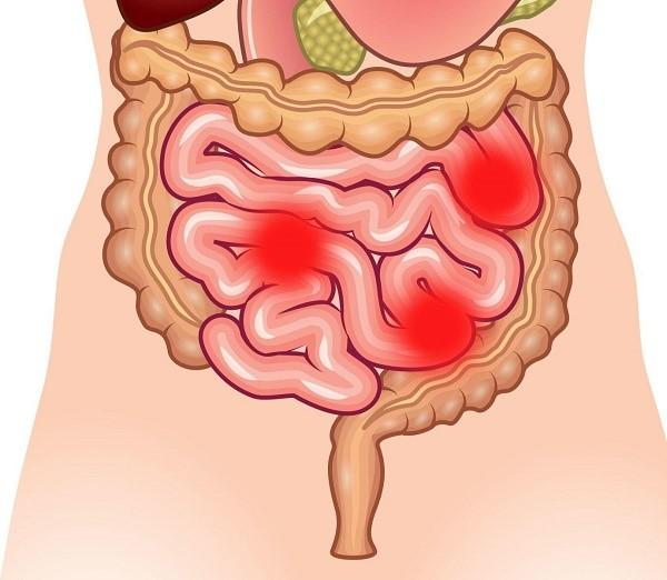 Каловые камни в кишечнике симптомы