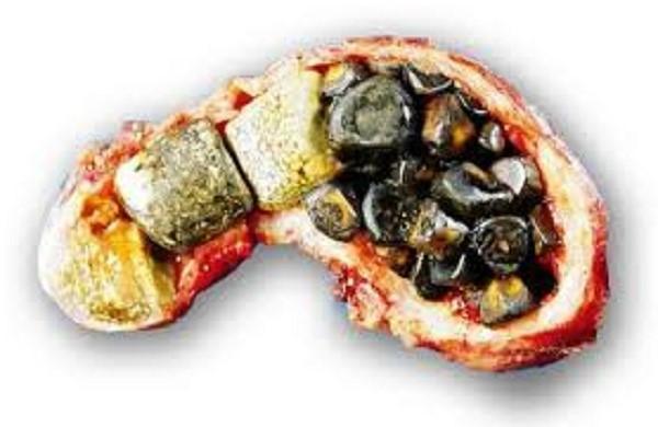 Камни внутри удаленного желчного пузыря