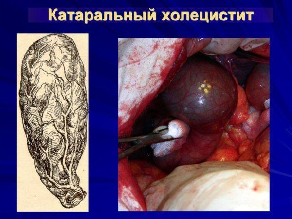 Катаральный холецистит