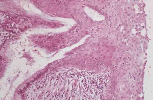 Диета при кишечной метаплазии слизистой желудка