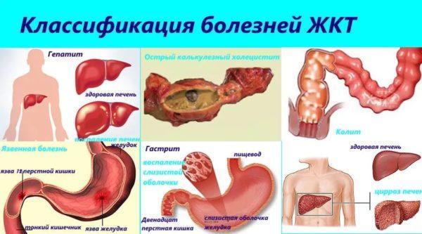 Классификация болезней ЖКТ