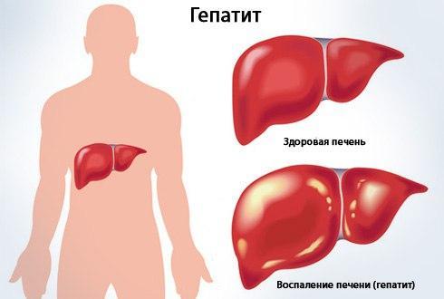 Здоровая печень и печень, пораженная гепатитом