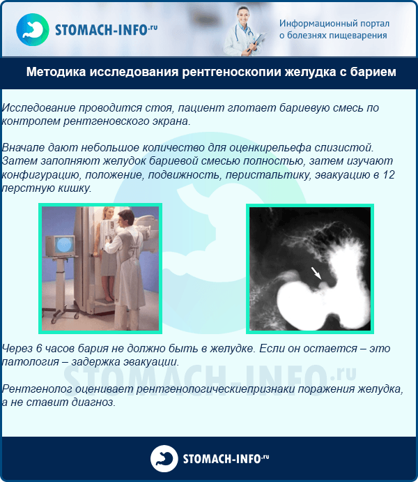 Методика исследования рентгеноскопии желудка с барием