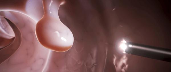 Обнаружить полипоз можно только визуально, используя современные диагностические методы