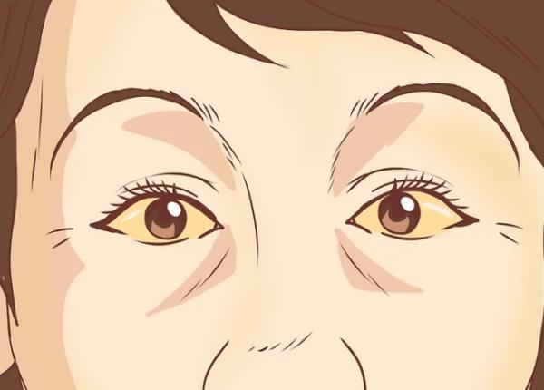 Обратите внимание на желтые глаза и кожу