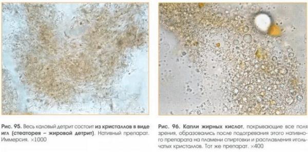 Общий клинический анализ кала