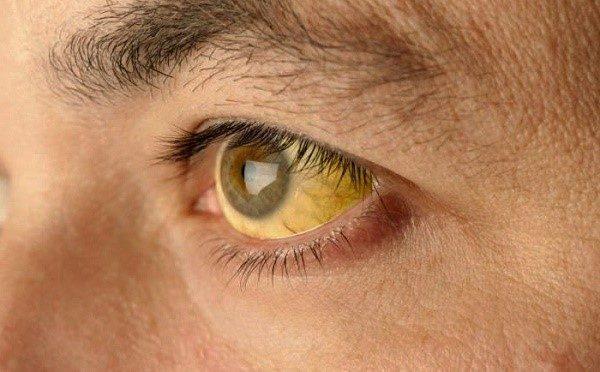 Если параллельно с поджелудочной железой поражен и желчный пузырь, может развиться желтуха: кожа и белки глаз желтеют, моча становится более темной