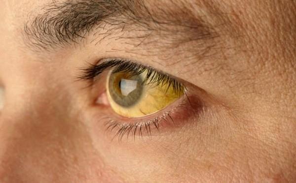 Обтурационная желтуха - один из распространенных симптомов