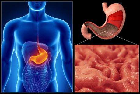 Очаг атрофических метаморфоз в желудке