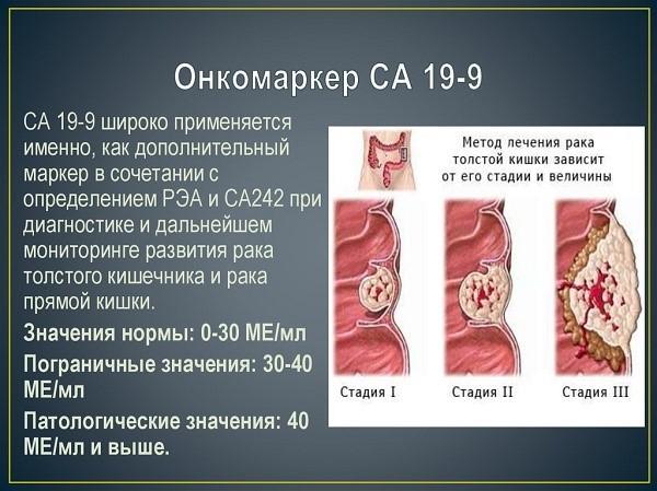 Особенности искомого специфического белка