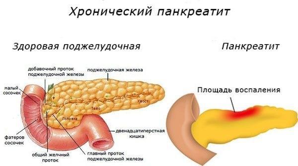 Площадь воспаления изначально может быть невелика, однако, со временем патологический процесс захватит орган полностью
