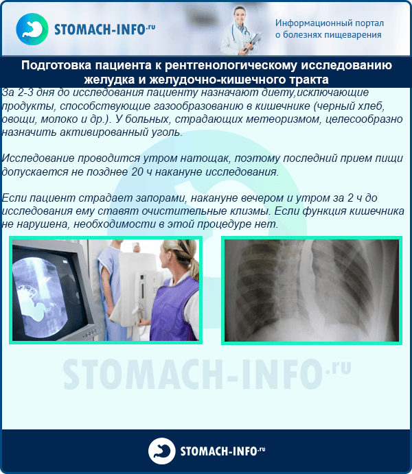 Подготовка пациента к рентгенологическому исследованию желудка и желудочно-кишечного тракта
