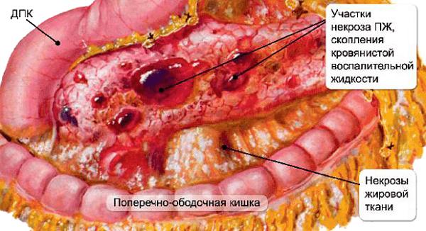 Порой вовремя непредотвращенное воспаление поджелудочной железы ведет к летальному исходу