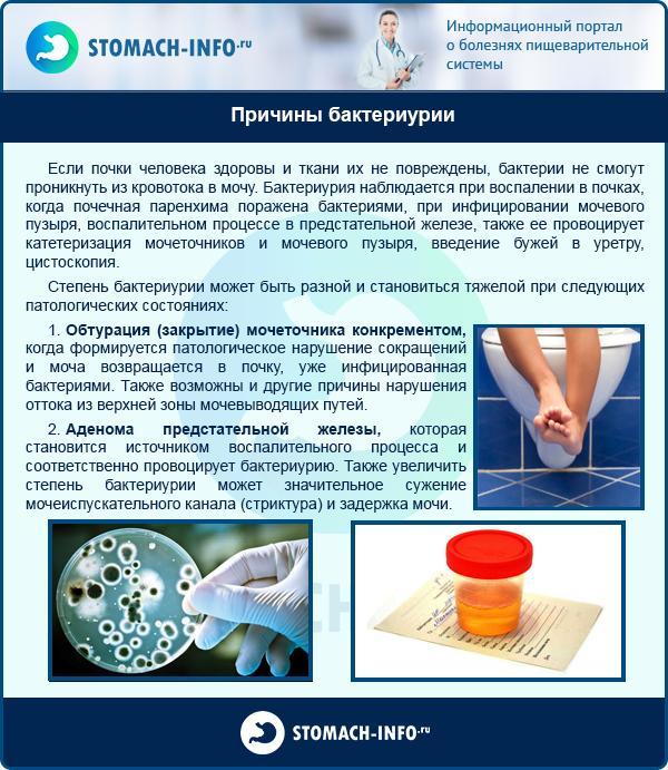 Причины бактериурии