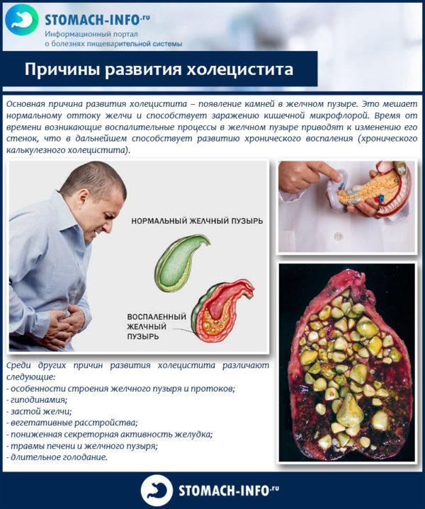 Причины развития холецистита