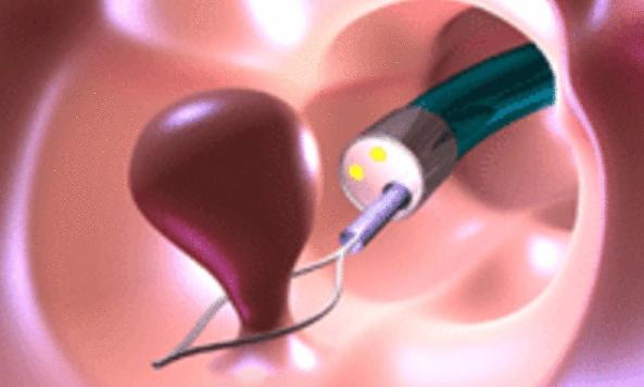 Процесс эндоскопического удаления полипа