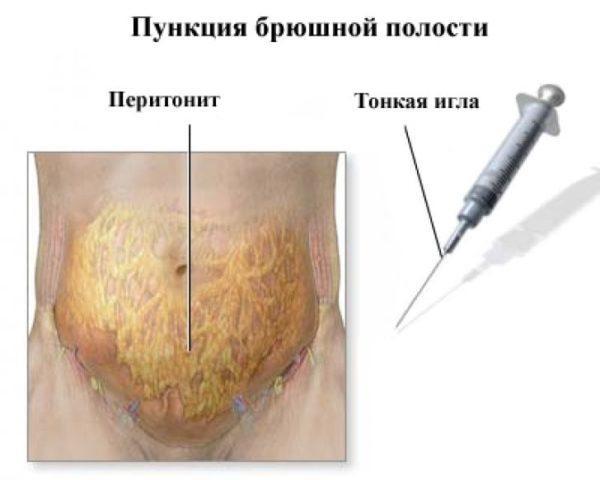 Пункция брюшной полости