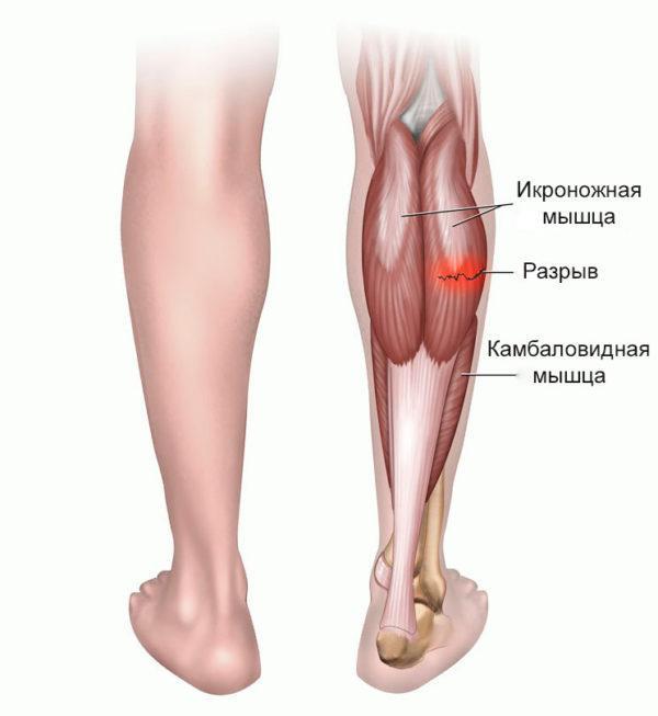 Растяжение мышц — это разрыв в мышечном брюшке