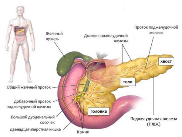 Развитие панкреатита. Камни в протоках поджелудочной железы