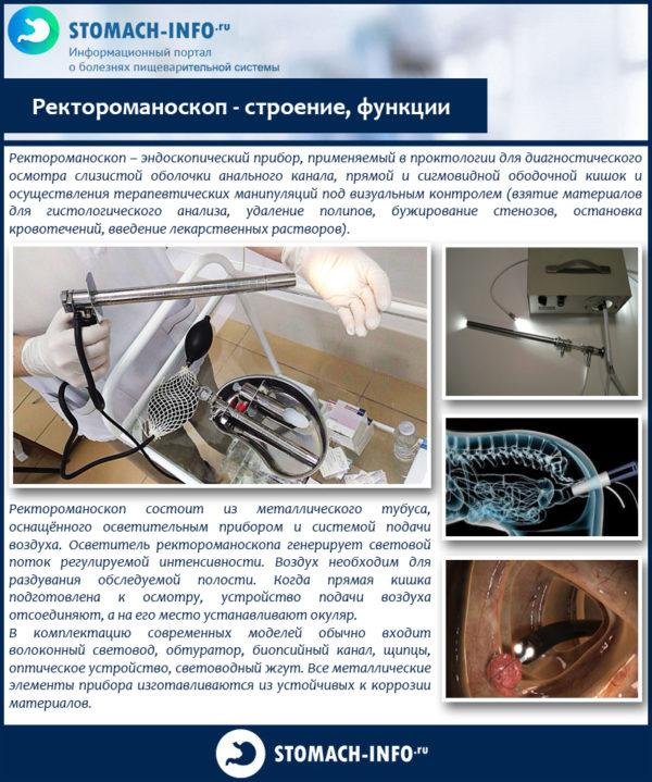 Ректороманоскоп - строение, функции